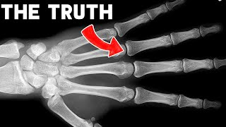 EUROPESE OMROEP | OPENN  | The Truth About Cracking Your Knuckles #shorts